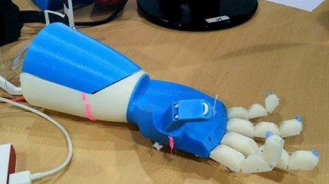 3d-printed-bionic-arm