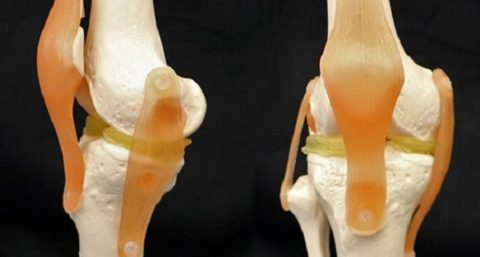 3d-printed-knee-implant-to-replace-meniscus