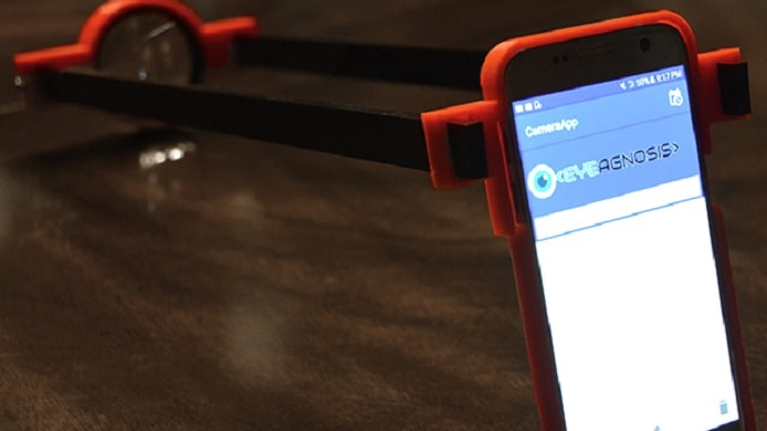 3D printed device works with a smartphone to detect symptoms